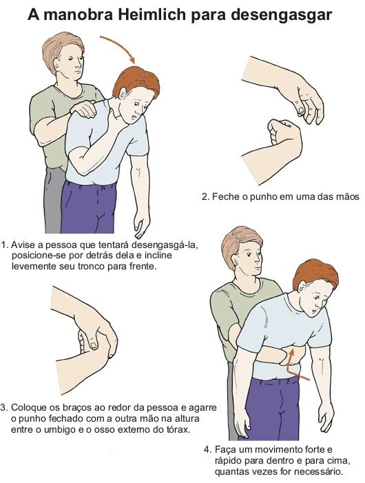 Resultado de imagem para manobra de heimlich